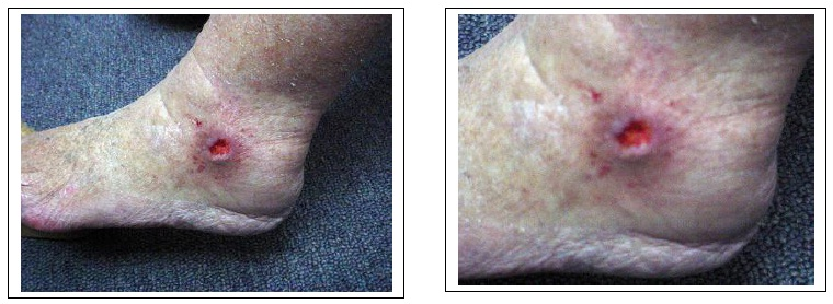 Photo of chronic leg ulcer before Earthing or Grounding helped it heal.