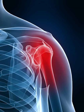 Acupuncture treatment helps shoulder pain in Toowoomba