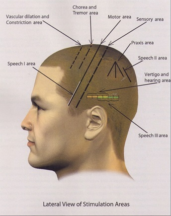 Diagram of Scalp-Acupuncture-in-Toowoomba-for-Neurological-Disorders