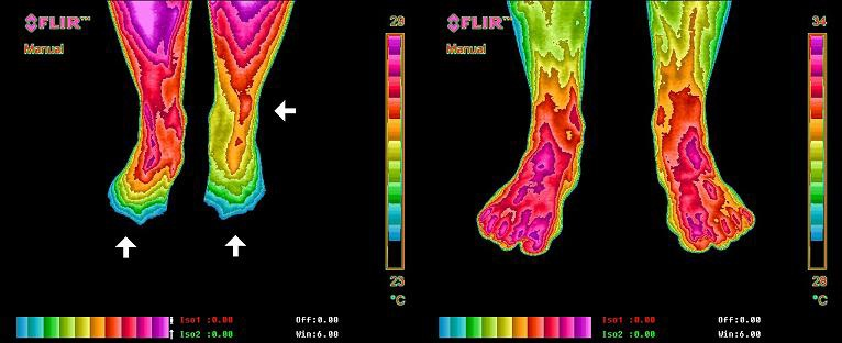 Thermal Image of Earthing benefit to chronic neck and upper back inflammation.