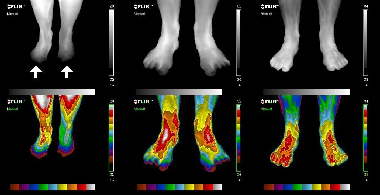 Thermal Image on how Earthing or Grounding benefits Cold Feet.