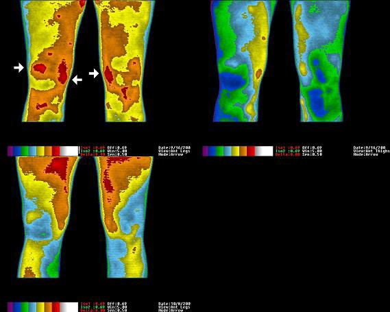 Thermal Image-Chronic knee pain healed by Grounding Earthing.