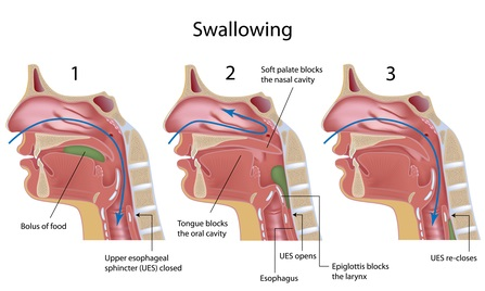 Scalp acupuncture for difficulty swallowing aka dysphagia due to stroke
